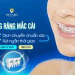 Niềng răng mắc cài – NHANH CHÓNG – LINH HOẠT – HIỆU QUẢ – TRẢ GÓP LÃI SUẤT 0%