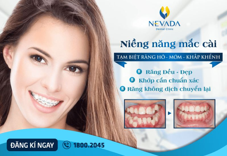 niềng răng cho trẻ em giá bao nhiêu, niềng răng trẻ em ở đâu tốt, niềng răng trẻ em giá bao nhiêu, chi phí niềng răng cho trẻ em, giá niềng răng trẻ em, niềng răng trẻ em tốt, niềng răng trẻ em bao nhiêu tiền, giá niềng răng cho trẻ em
