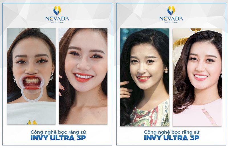 bọc răng sứ Invy Ultra 3P