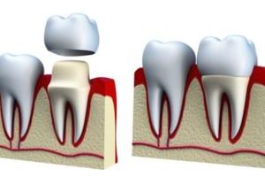 Bọc mão răng sứ giá bao nhiêu tiền có đắt không?  Kiến thức bọc răng