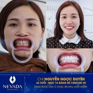 có nên bọc răng sứ hay không, có nên bọc răng sứ, bọc răng sứ nên hay không, có nên làm răng sứ, có nên bọc răng sứ không, có nên làm răng sứ không, có nên bọc răng sứ ko, co nen boc rang su khong