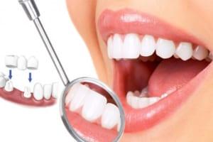 Nếu răng bị nhiễm kháng sinh nặng tôi có nên bọc răng sứ không?