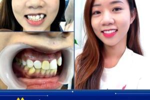 Bọc răng sứ có hại không? – Tư vấn chuyên gia