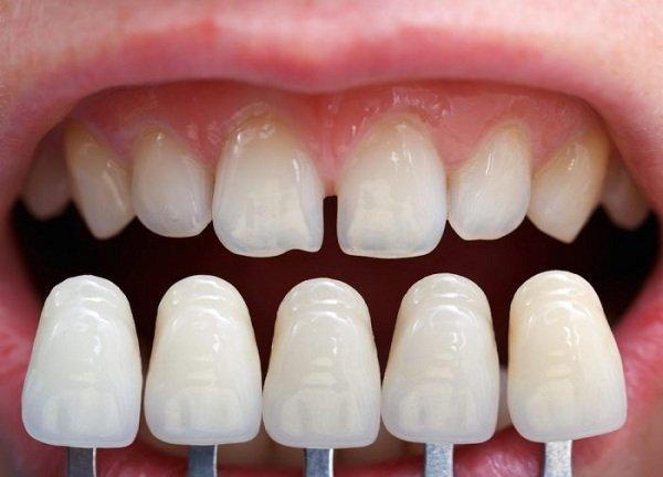 bọc răng sứ có hại ko, bọc răng sứ có hại gì không, bọc răng sứ thẩm mỹ có hại không, bọc răng sứ có tác hại gì không