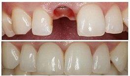 Kết Quả Cấy Răng Implant Của Người Mẫu Vân Anh
