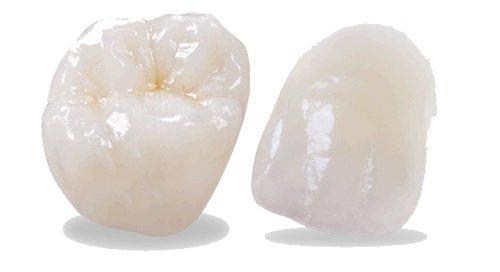 bọc răng sứ emax giá bao nhiêu,răng sứ emax giá bao nhiêu,răng toàn sứ emax giá bao nhiêu,bảng giá răng sứ emax,giá răng sứ emax,giá tiền răng sứ emax press