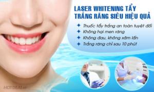 tẩy trắng răng có hại không, tẩy trắng răng có đau không, có nên tẩy trắng răng, tẩy trắng răng bằng laser whitening có hại không, tẩy trắng răng bằng laser có đau không, review tẩy trắng răng laser whitening, tẩy trắng răng bằng laser có hại không, làm trắng răng bằng laser, có nên tẩy trắng răng bằng laser, tẩy trắng răng công nghệ laser whitening