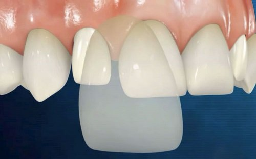 Răng sứ veneer là gì ? Phương pháp thẩm mỹ răng hiện đại thế kỉ 21