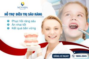 Cách trị sâu răng tận gốc nhanh nhất khỏi dứt điểm đừng nên bỏ qua