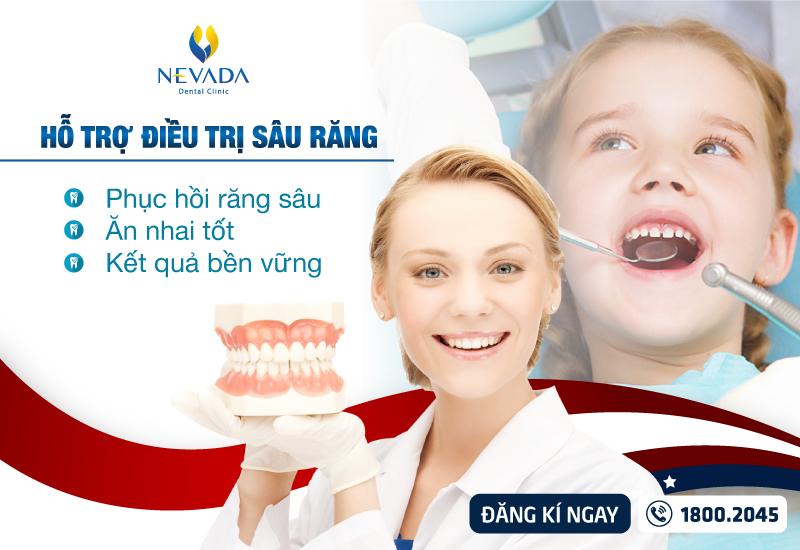 Sâu răng: Lý do tại sao, triệu chứng, chẩn đoán và chữa trị
