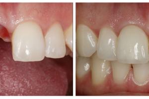 Hình ảnh khách hàng cấy ghép Implant