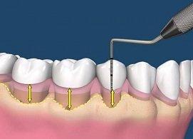 Hỗ trợ điều trị nha chu, nướu khỏe, không còn chảy máu, bảo tồn chân răng, ngừa tiêu răng, Nha Khoa Nevada