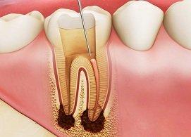 Hỗ trợ điều trị tủy răng, không còn đau nhức, giữ lại răng gốc, ăn nhai tốt, ngăn chặn tiêu răng, Nha Khoa Nevada