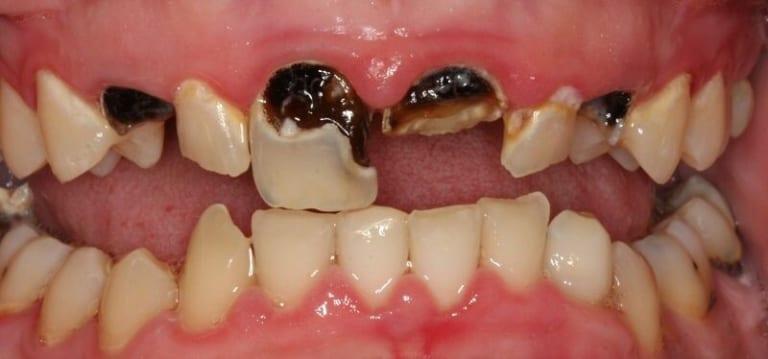 www.123nhanh.com: Chữa trị răng chết tủy như thế nào?