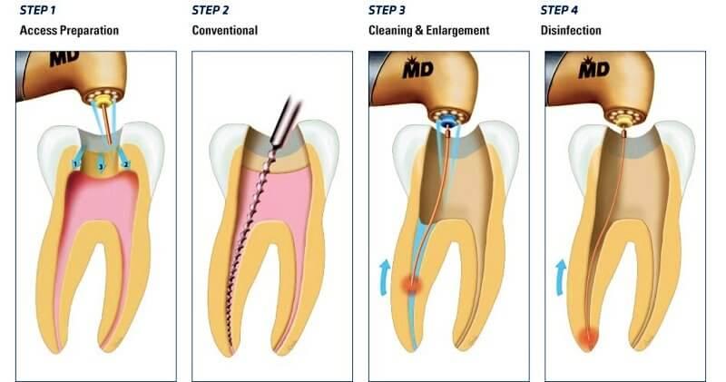 chữa tủy răng giá bao nhiêu, báo giá lấy tủy răng, giá tiền diệt tủy răng, giá diệt tủy răng, giá điều trị tủy răng, giá hút tủy răng, chữa tủy răng bao nhiêu tiền, giá cả lấy tủy răng, lấy tủy răng giá rẻ, giá chữa viêm tủy răng, lấy tủy răng hết bao nhiêu tiền, chi phí điều trị tủy răng, giá triệt tủy răng, chữa viêm tủy răng hết bao nhiêu tiền, điều trị tủy răng giá bao nhiêu, điều trị tủy răng bao nhiêu tiền, điều trị tủy răng hết bao nhiêu tiền, điều trị tủy răng hết bao nhiêu, điều trị tủy răng mất bao nhiêu tiền, trám răng lấy tủy giá bao nhiêu, lấy tủy răng mất bao lâu, nha khoa điều trị tủy răng an toàn, giá tiền điều trị tủy