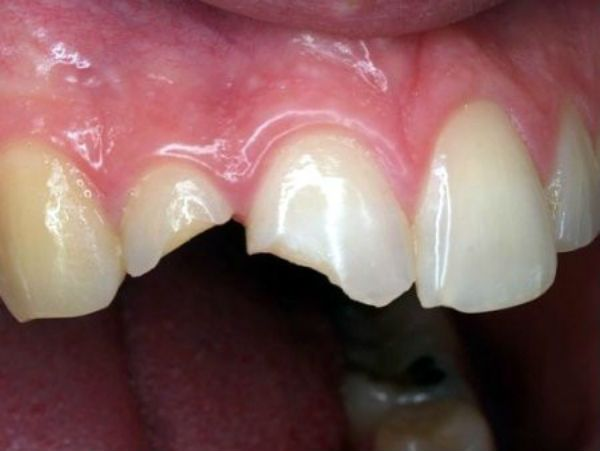 bọc răng sứ được bao lâu,bọc răng sứ giữ được bao lâu,bọc răng sứ có được vĩnh viễn không,trồng răng sứ có bền không,bọc răng sứ có được lâu không,bọc răng sứ duy trì được bao lâu,bọc răng sứ dùng được bao lâu,bọc răng sứ vĩnh viễn,bọc răng sứ sử dụng được bao lâu