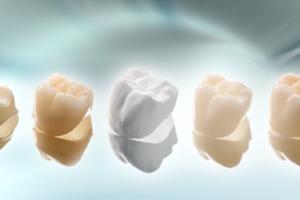 Kết quả bọc răng sứ duy trì bao lâu?