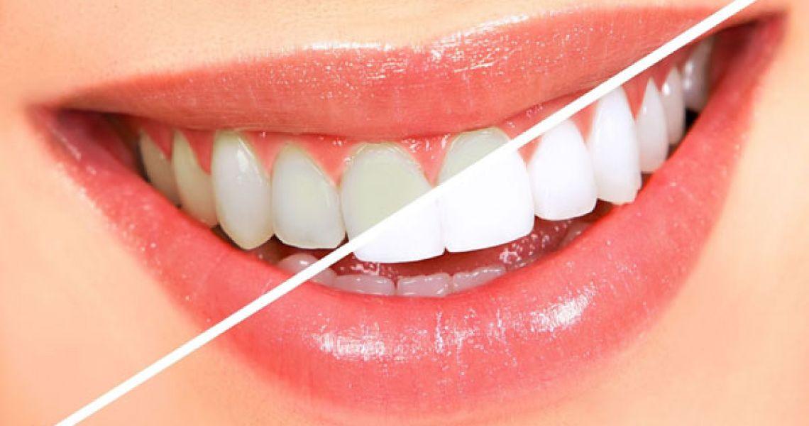 bọc răng sứ không mài giá bao nhiêu tiền, bọc răng sứ không mài, bọc răng sứ không mài giá bao nhiêu, bọc răng sứ không mài giá, giá bọc răng sứ không mài, răng sứ không mài giá, chi phí bọc răng sứ không mài, chi phí bọc răng sứ không mài giá bao nhiêu tiền