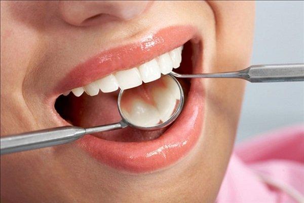 Trị sâu răng tận gốc