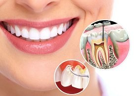 Lấy cao răng máy siêu âm, không ê buốt, lấy đi mọi mảng bám, răng trắng bóng, ngăn ngừa bệnh lý nha khoa, Nha Khoa Nevada