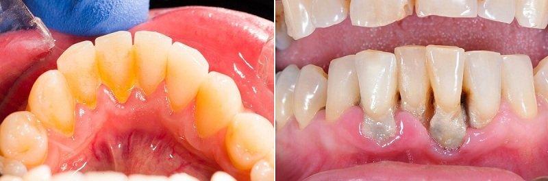 lấy cao răng bằng sóng siêu âm,lấy cao răng bằng máy siêu âm,lấy cao răng siêu âm hà nội,lấy cao răng làm trắng răng,lấy cao răng là gì,lấy cao răng kiêng gì,máy lấy cao răng,lấy cao răng răng có trắng hơn không,kỹ thuật lấy cao răng bằng máy siêu âm,lấy cao răng và tẩy trắng răng,máy lấy cao răng siêu âm,lấy cao răng sóng siêu âm,lấy cao răng công nghệ mới,phương pháp lấy cao răng,nha khoa lấy cao răng,lấy cao răng có ảnh hưởng gì không,sau khi lấy cao răng nên kiêng gì,lấy cao răng có hại gì không,cách lấy cao răng lâu năm,lấy cao răng để làm gì,tại sao phải lấy cao răng,lấy cao răng có làm trắng răng không,lấy cao răng bao lâu,lấy cao răng,máy siêu âm lấy cao răng,lấy cao răng có ảnh hưởng đến răng không,trước và sau khi lấy cao răng,dịch vụ lấy cao răng, điều trị nha chu