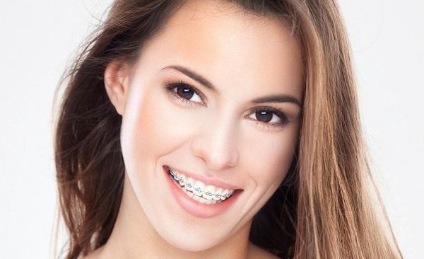 sau khi niềng răng nên làm gì,sau khi niềng răng xong,chuẩn bị gì trước khi niềng răng,các lưu ý khi niềng răng,lưu ý khi đeo niềng răng,những dấu hiệu khi mới niềng răng,sau khi niềng răng nên làm gì,những điều cần biết trước khi niềng răng,các vấn đề khi niềng răng,sau khi niềng răng xong,ngày đầu niềng răng