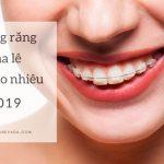 Niềng răng pha lê giá bao nhiêu năm 2019? Xem ngay giá niềng răng hiện nay