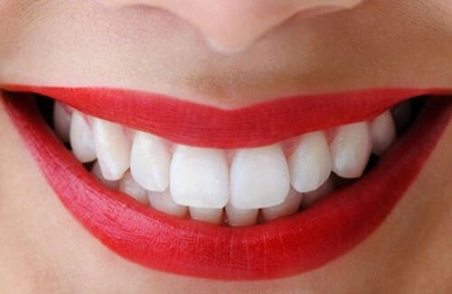 nên làm răng sứ hay dán veneer, nên bọc răng sứ hay dán veneer, có nên dán răng sứ veneer, nên dán răng sứ hay bọc răng sứ, dán sứ và bọc sứ, nên dán veneer hay bọc răng sứ, bọc răng sứ hay dán veneer, Nên dán sứ hay bọc sứ, nên bọc sứ hay dán veneer, nên dán veneer hay bọc răng sứ