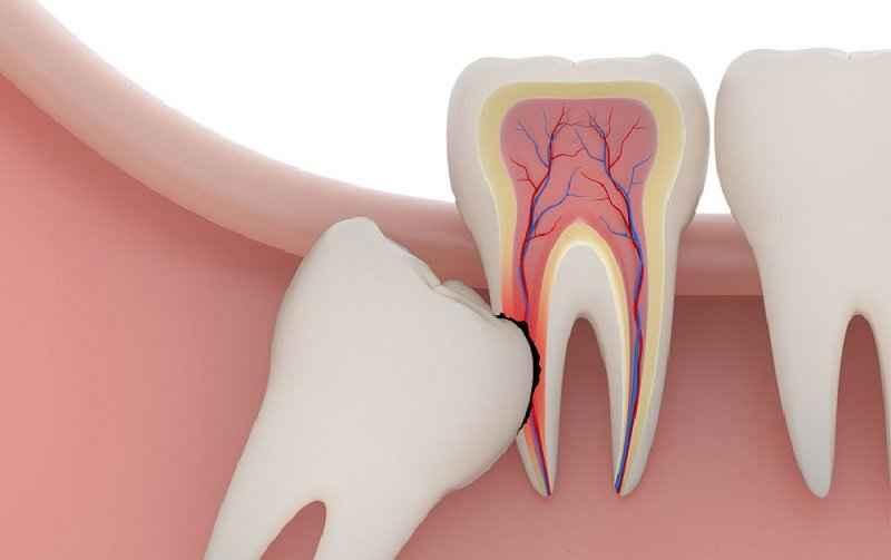 nhổ răng không đau, cách nhổ răng không đau, nhổ răng an toàn, mẹo nhổ răng không đau, phương pháp nhổ răng không đau, nhổ răng đau không, cách nhổ răng, trước khi nhổ răng nên làm gì, nhổ răng, nhổ răng an toàn, nhổ răng an toàn hà nội, cách nhổ răng an toàn, quy trình nhổ răng, địa chỉ nhổ răng uy tín tại hà nội, địa chỉ nhổ răng uy tín, địa chỉ nhổ răng uy tín ở hà nội
