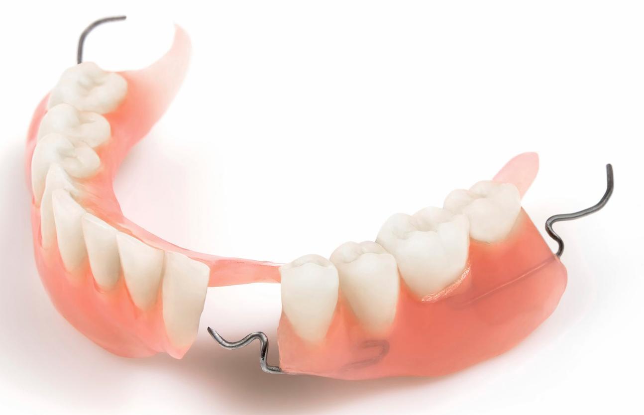 trồng răng giả tháo lắp,trồng răng giả nguyên hàm,trồng răng giả cố định,có nên trồng răng giả không,hàm răng giả tháo lắp,làm răng giả cố định,răng giả tháo lắp,trồng răng tháo lắp,trồng răng cả hàm,dịch vụ răng giả tháo lắp,trồng răng giả