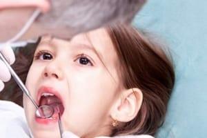 Trẻ bao nhiêu tuổi thì niềng răng hiệu quả tốt nhất? Ba mẹ nên tham khảo