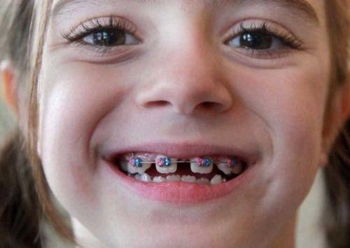 Niềng răng cho bé