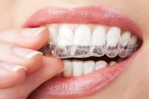 Niềng răng không mắc cài Invisalign – Răng đẹp thẳng hàng cho nàng tỏa sáng