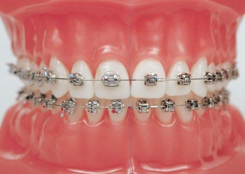 mắc cài kim loại thường, niềng răng mắc cài kim loại thường, niềng răng mắc cài kim loại thường giá bao nhiêu