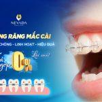Niềng răng mắc cài – NHANH CHÓNG – LINH HOẠT – HIỆU QUẢ