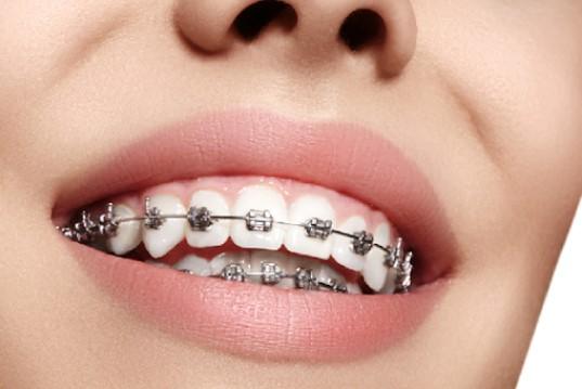 giá niềng răng mắc cài pha lê, niềng răng mắc cài pha lê bao nhiêu tiền, niềng răng pha lê giá bao nhiêu, giá mắc cài pha lê, niềng răng mắc cài pha lê giá, niềng răng pha lê giá, niềng răng mắc cài pha lê giá bao nhiêu