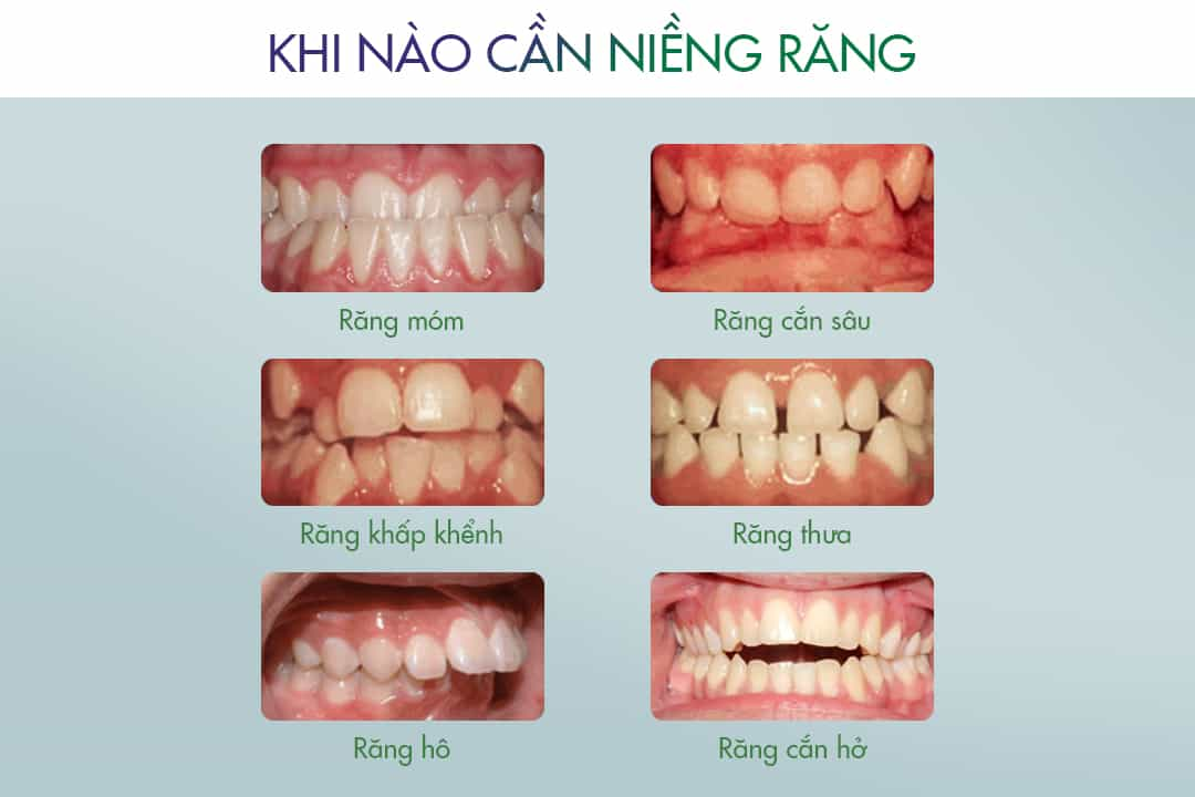 niềng răng vô hình, niềng răng vô hình là gì, niềng răng vô hình có tốt không, niềng răng vô hình bao nhiêu tiền, niềng răng vô hình zenyum, niềng răng vô hình invisalign,