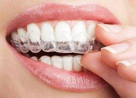 Niềng răng khay trong không mắc cài, không đau, răng dịch chuyển đúng vị trí, không tái khám nhiều, Nha Khoa Nevada