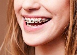 Niềng răng mắc cài, sắp xếp lại vị trí răng đều, khớp cắn chuẩn, răng không dịch chuyển trở lại