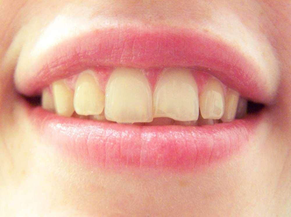 Tẩy trắng răng bị nhiễm kháng sinh flour và tetra khắc phục răng ố vàng hiệu quả
