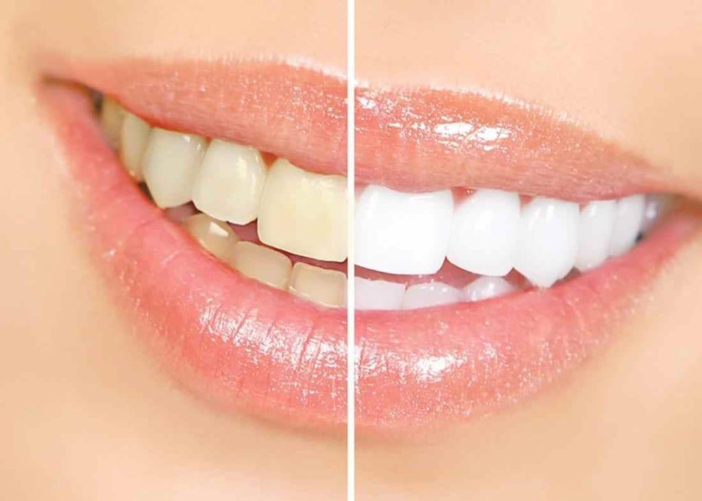 răng nhiễm kháng sinh,tẩy trắng răng nhiễm kháng sinh,răng nhiễm kháng sinh là gì,răng bị nhiễm fluor,răng bị nhiễm kháng sinh tetracycline,răng nhiễm màu tetracyclin,răng bị nhiễm kháng sinh,răng nhiễm fluor có tẩy trắng được không,răng nhiễm màu kháng sinh,răng bị nhiễm màu kháng sinh,cách chữa răng bị nhiễm fluor,răng nhiễm fluor,tẩy trắng răng nhiễm tetracycline,răng nhiễm tetra có tẩy trắng được không,răng vàng bẩm sinh,răng ố vàng bẩm sinh,răng bị nhiễm tetra,tẩy trắng răng bị nhiễm fluor