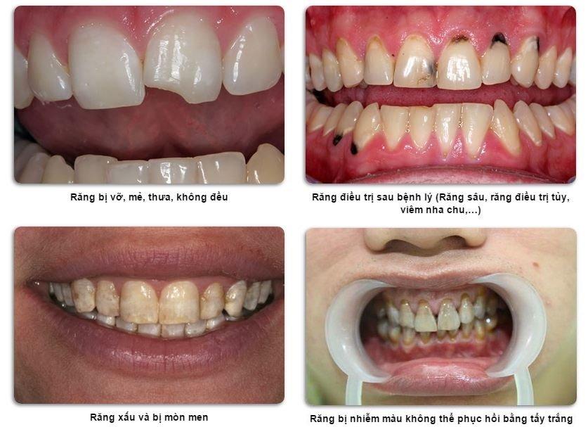 bọc răng sứ emax có tốt không, có nên bọc răng sứ emax không, răng sứ emax là gì, răng sứ emax có tốt không, răng sứ emax của nước nào, sứ emax là gì