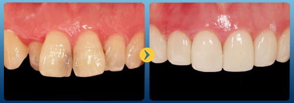 bọc răng sứ titan là gì, trồng răng sứ titan là gì, răng sứ titan là gì, hình ảnh răng sứ titan, hình ảnh bọc răng sứ titan, sứ titan là gì, mão răng sứ Titan là gì, cấu tạo răng sứ titan