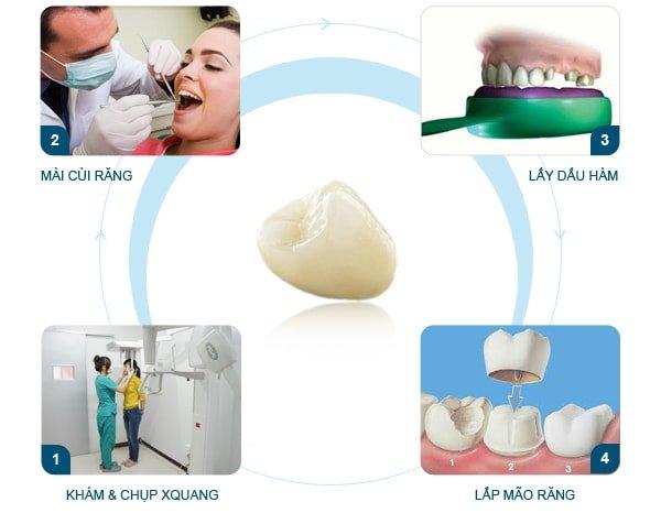 răng sứ titan là gì, hình ảnh răng sứ titan, quy trình trồng răng sứ titan, quy trình bọc răng sứ titan, địa chỉ bọc răng sứ titan uy tín, răng sứ titan, răng sứ titan có mấy loại, bọc răng sứ titan, răng sứ titan có tốt không, bọc răng sứ titan có tốt không, răng sứ titan sử dụng được bao lâu, bọc răng sứ titan tại hà nội, răng sứ titan có bền không