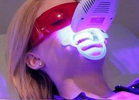 Tẩy trắng răng Laser Whitening, 60' có răng trắng xinh, không ê buốt, không ăn kiêng, Nha Khoa Nevada