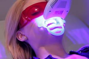 Tẩy trắng răng bằng Laser Whitening có hại không? Những điều phải biết
