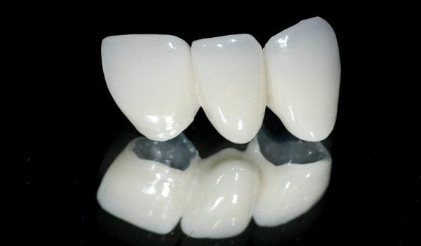 tháo răng sứ làm lại,tháo răng sứ làm lại có đau không,tháo răng sứ có đau không,tháo răng sứ,cách tháo răng sứ