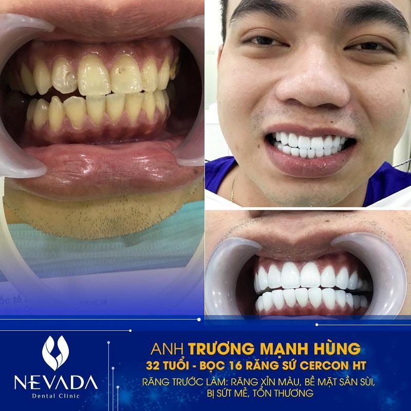 khách hàng bọc răng sứ nevada