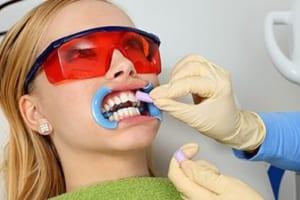 Máng ngậm trắng răng tại nhà AN TOÀN giúp răng trắng đẹp tự nhiên
