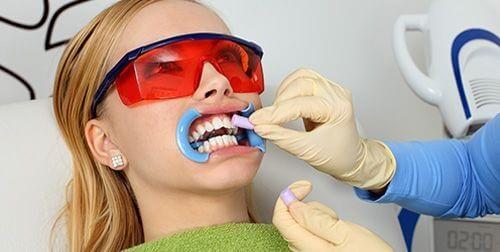 tẩy trắng răng bằng máng,ngậm máng tẩy trắng răng trong bao lâu,mua máng tẩy trắng răng ở đâu,giá làm máng tẩy trắng răng,tẩy trắng răng bằng máng bao nhiêu tiền,cách tẩy trắng răng bằng máng,quy trình tẩy trắng răng bằng máng,cách tẩy trắng răng bằng máng tại nhà